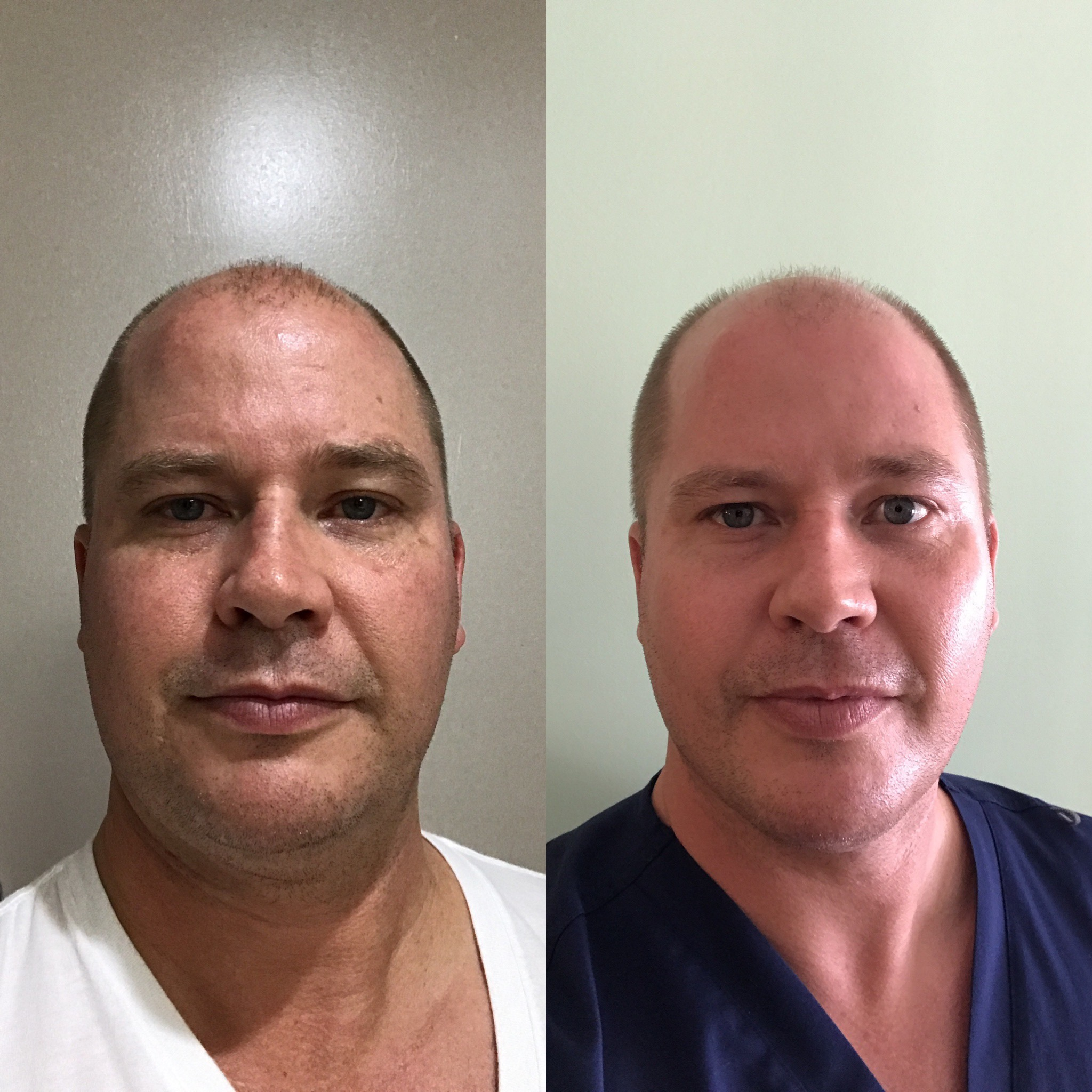 Stem Cell Therapy Boca Raton